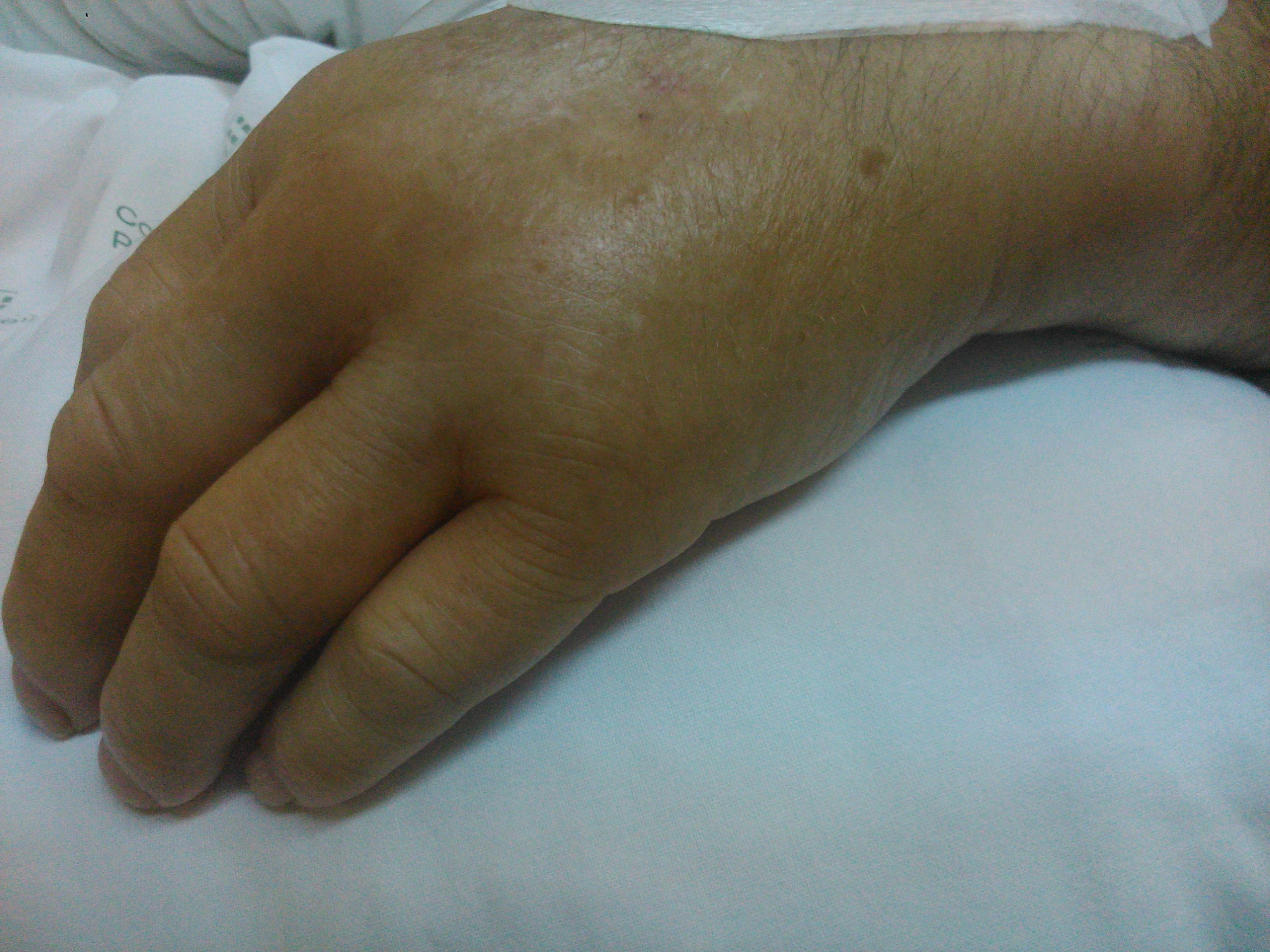 Tendinitis mano tratamiento pdf