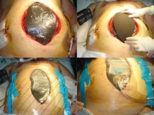 http://zl.elsevier.es/es/revista/cirugia-espanola-36/vacuum-assisted-closure-utilidad-abdomen-abierto-cierre-90155571-originales-2012