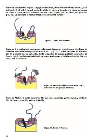 suturas1111