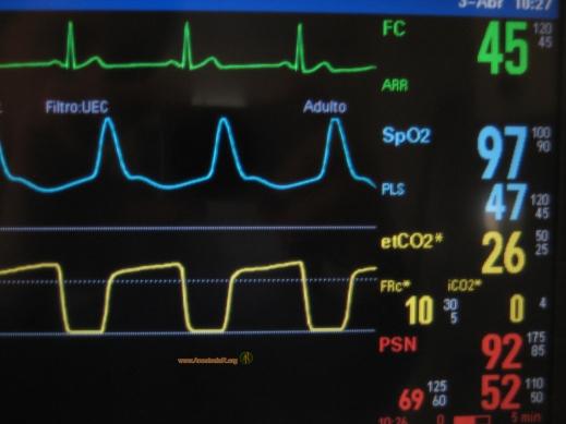Monitorizacion-paciente-Unidad-de-Cuidados-Intensivos